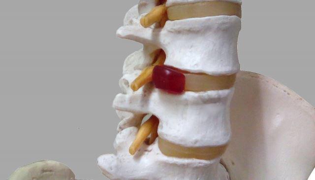 椎間板に過度な負担をかけるヘルニアを引き起こす原因になる